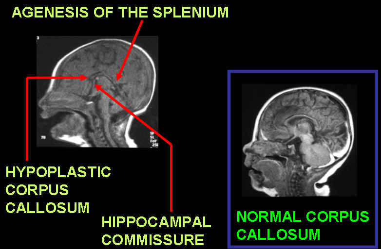 having a family member with agenesis of the corpus callosum Neurological and psychiatric aspects of with partial agenesis of the corpus callosum manifested psychiatric aspects of corpus callosum.